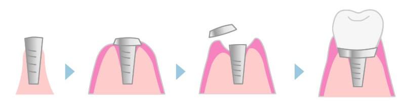 1回法の流れ(抜歯後の流れ)