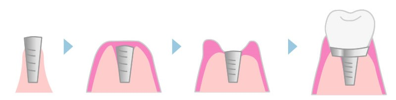 2回法の流れ(抜歯後の流れ)