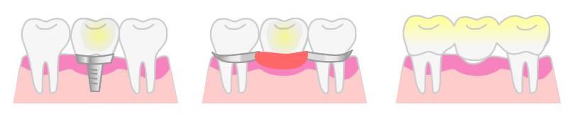 インプラント部分入れ歯ブリッジ