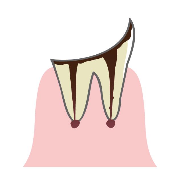 歯根の神経